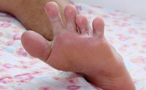 脚气有哪些危害 怎么治疗脚气 脚气该怎么治疗