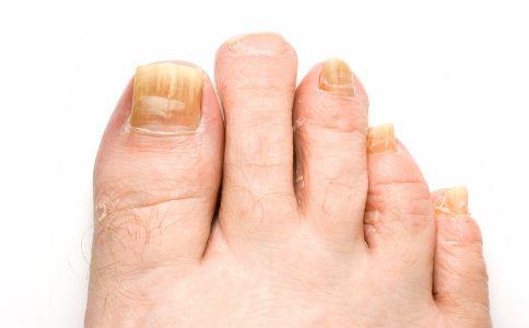 灰指甲的六大症状 患者该如何护理