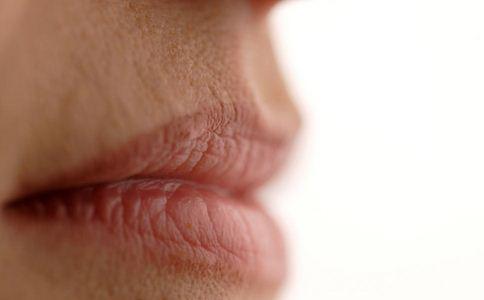 如何预防嘴唇干裂 预防嘴唇干裂的方法 食物预防嘴唇干裂