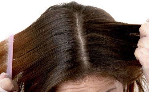 有头皮屑怎么办 如何治疗头皮屑 快速去除头皮屑的方法