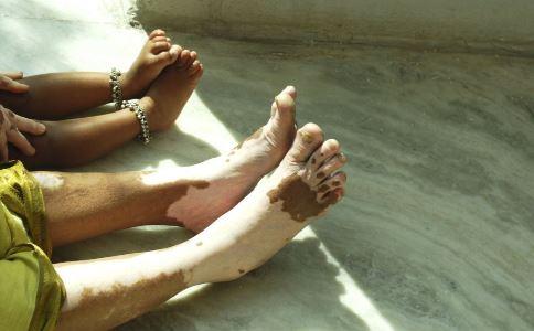 哪种人不能泡脚 不宜泡脚的人有哪些 孕妇能泡脚吗