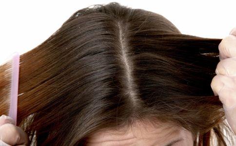 头发爱出油怎么办 头发爱出油的原因 头发爱出油如何护发