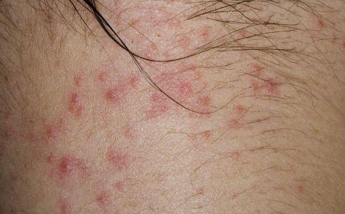 接触性皮炎怎么预防 该怎么预防接触性皮炎 接触性皮炎该怎么预防
