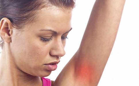 急性湿疹的饮食禁忌有哪些 急性湿疹患者有哪些饮食禁忌 急性湿疹患者该吃什么