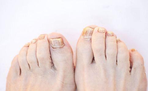 灰指甲的症状有哪些 灰指甲的保健措施有哪些 该怎么做好灰指甲的保健措施