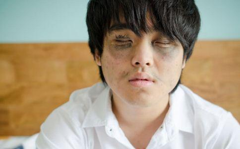 怎么快速去黑眼圈 黑眼圈怎么去除 哪些方法可以去除黑眼圈