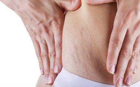 孕妇如何预防妊娠纹 吃什么预防妊娠纹 孕期长妊娠纹怎么办
