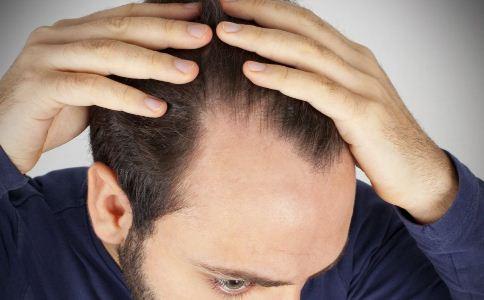 导致男人脱发的原因有哪些 怎么预防脱发 预防脱发的方法有哪些