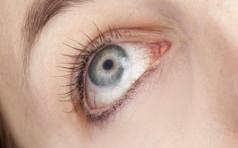 什么是干眼症 如何预防干眼症 干眼症怎么预防