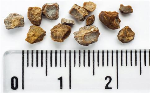 胆结石的原因 胆结石有哪些症状 怎么检查胆结石