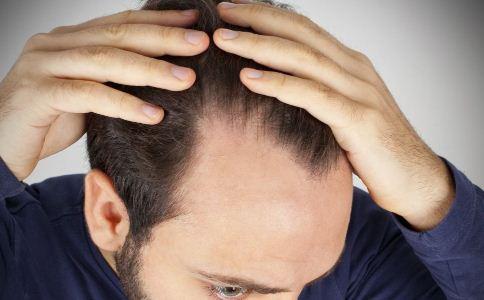 头发干枯的原因有哪些 男人该怎么养发 哪些食物可以养发