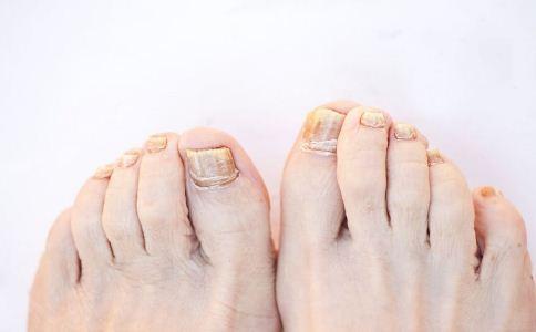 怀疑患灰指甲该怎么办 怎么预防灰指甲 灰指甲该怎么预防