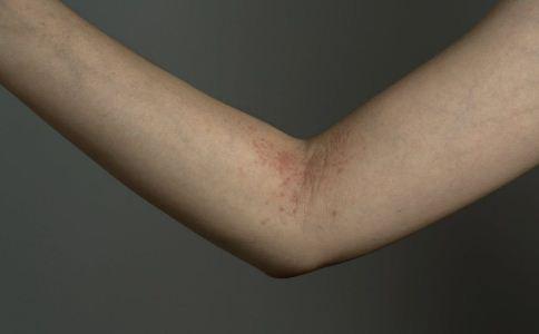 银屑病是怎么形成的 该怎么预防银屑病 银屑病该怎么预防