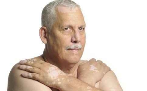老年人也会患白癜风吗 怎么预防白癜风 老年人怎么预防白癜风