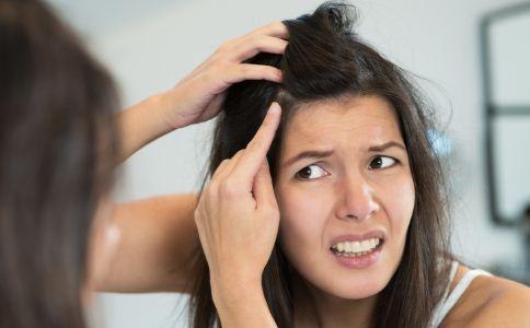 冬季头皮屑变多怎么办 头皮屑变多怎么办 冬季如何预防头皮屑变多