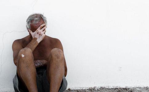 白癜风的症状有哪些 白癜风患者不能吃什么 白癜风的禁忌有哪些
