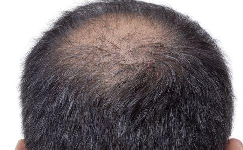 男人怎么预防脱发 哪些方法可以防止脱发 防止脱发的食疗方法有哪些