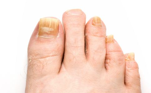 灰指甲该怎么治疗 中医可以治疗灰指甲吗 该怎么治疗灰指甲