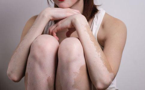 白癜风早期症状有哪些 白癜风为什么要早治疗 白癜风怎么治疗