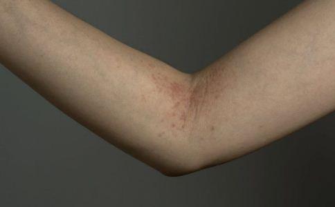 手足癣有什么特点 怎么预防手足癣 手足癣怎么治疗