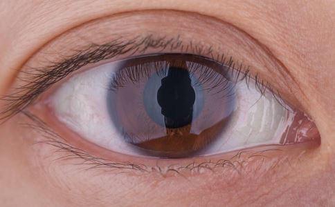 哪些眼病会引起眼底病 如何预防眼底病 预防眼底病的方法