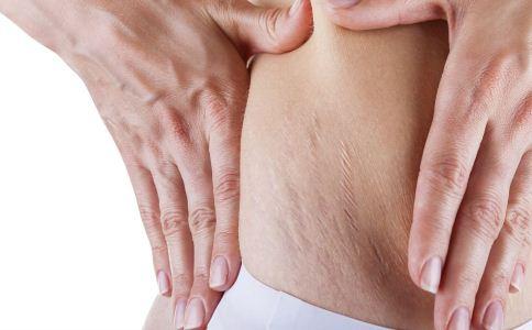 为什么会产生妊娠纹 怎么预防妊娠纹 妊娠纹该怎么预防
