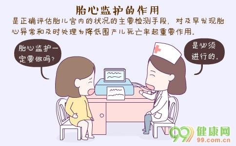 胎心监护的作用 胎心监护一定要做吗 怀孕多久做胎心监护