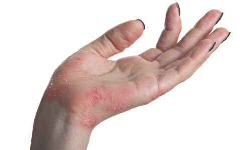 接触性皮炎的症状有哪些 怎么预防接触性皮炎 接触性皮炎怎么预防