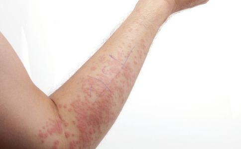荨麻疹怎么治疗 荨麻疹怎么治 怎么治疗荨麻疹