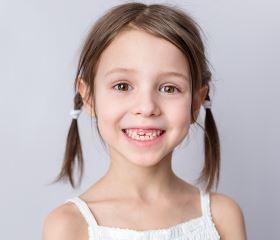 听力检查测试,怎么测试听力,国际爱耳日