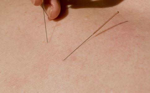 艾滋病会不会通过针灸传染 针灸会传染艾滋病吗 针灸要注意什么