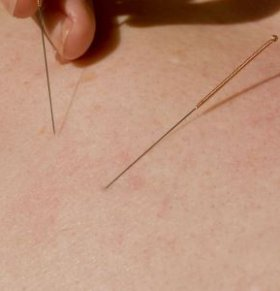艾滋病会不会通过针灸传染