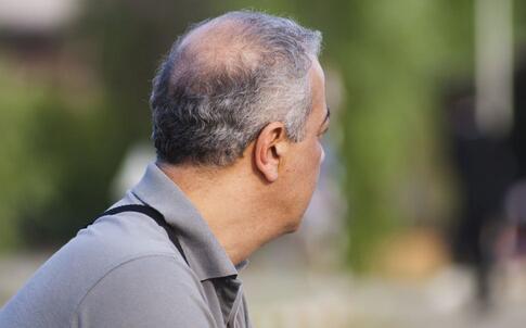 300斤铁鞋散步治秃顶 脱发的原因有哪些 如何避免脱发