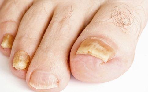 指甲断裂是怎么回事 指甲裂开是什么原因 为什么指甲会自己断裂