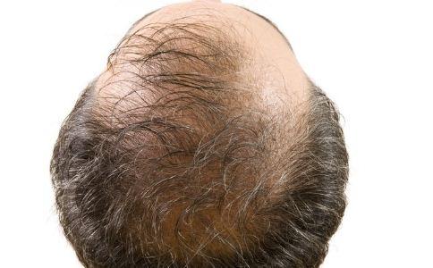 男人吃什么可以防脱 男人脱发吃什么好 男人怎么防止脱发