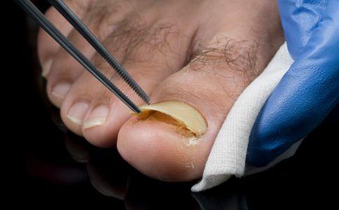 导致甲沟炎的原因有哪些 怎么预防甲沟炎 甲沟炎该怎么护理