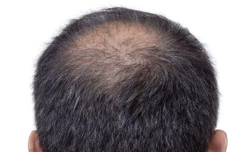 导致男人脱发的原因有哪些 造成脱发的原因有哪些 男人怎么预防脱发