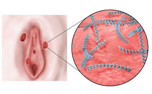 日本梅毒首超5千 如何预防梅毒 梅毒的预防方法有哪些