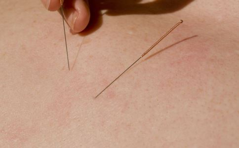 针灸如何减肥 针灸减肥的方法 针灸减肥有什么要注意