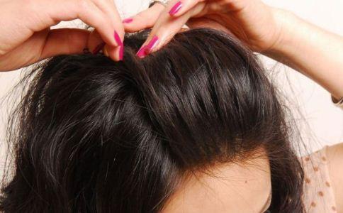 头发爱出油该怎么办 怎么改善头发出油 头发出油该怎么办