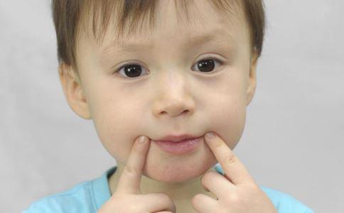 孩子口腔溃疡该怎么办 孩子口腔溃疡 孩子口腔溃疡该咋办