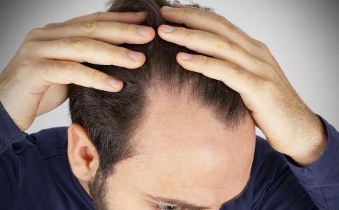 冬季为什么会掉头发 冬季脱发的原因 冬季怎么保护头发