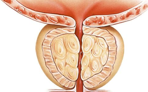 男人前列腺怎么保养 男人怎么保养前列腺 男人保养前列腺该多吃什么