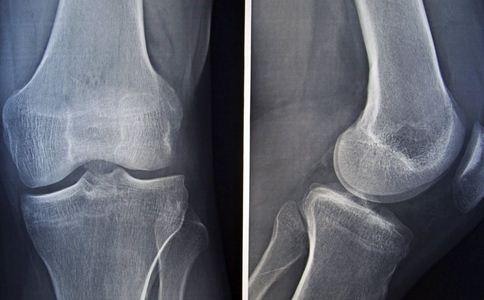 男童患罕见石骨症 什么是石骨症 石骨症的表现