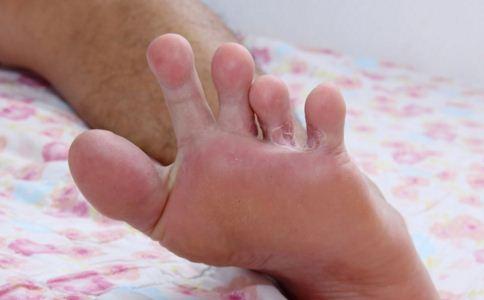 皮炎湿疹怎么办 皮炎湿疹有哪些症状 皮炎湿疹怎么治疗