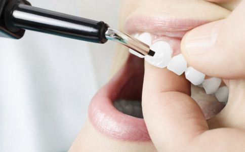 洗牙真的会损害牙齿健康吗 洗牙后要注意什么 如何洗牙