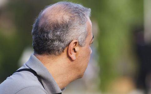 男人脱发误区有哪些 男人脱发怎么治疗 男人怎么治疗脱发