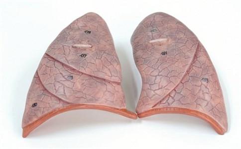 肺癌传染吗 肺癌有什么危害 肺癌如何治疗