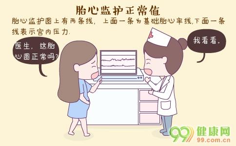 胎心监护正常值 什么是胎心监护 胎心监护异常怎么办