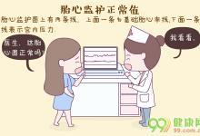 胎心监护正常值
